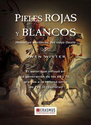 PIELES ROJAS Y BLANCOS