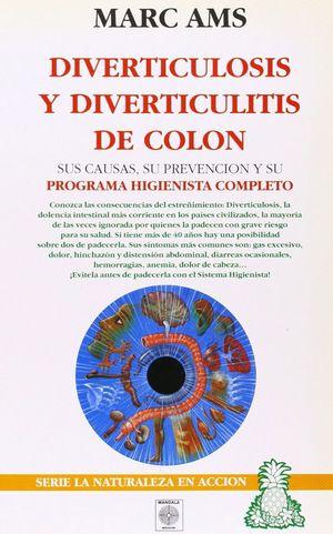 DIVERTICULOSIS Y DIVERTICULITIS DE COLON