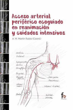 ACCESO ARTERIAL PERIFERICO ECOGUIADO EN REANIMACION Y CUIDADOS